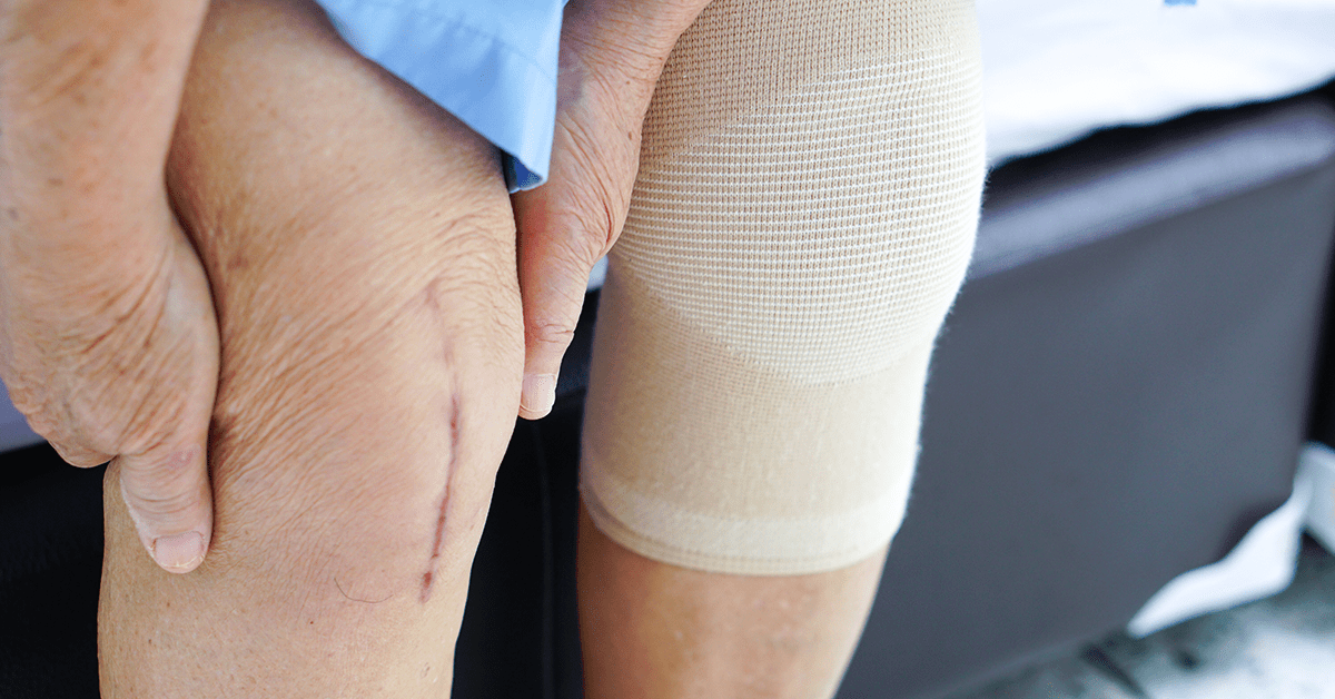 Fast Recovery of Wounds